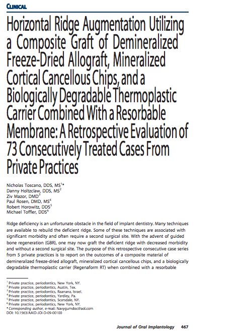 Horizontal Ridge Augmentation Utilizing a Composite Graft of Demineralized Freeze-Dried Allograft